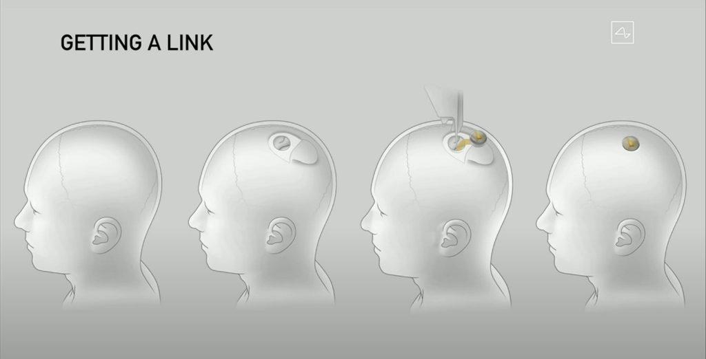 Илон Маск делает ставку на Neuralink, а не на умные устройства из вчерашних технологий